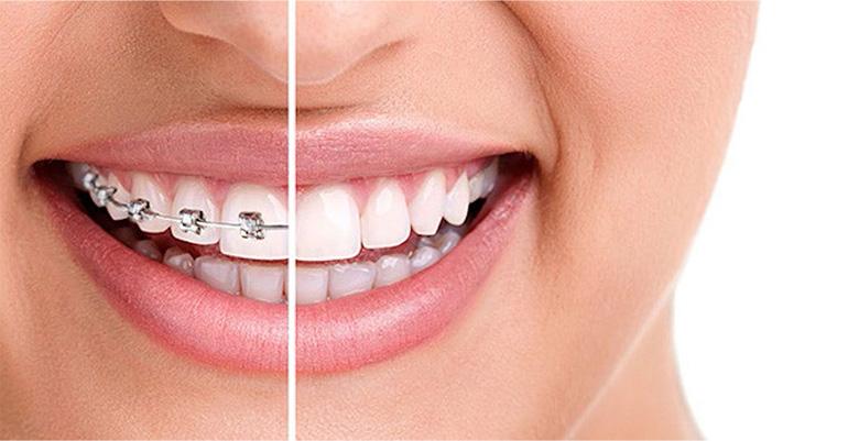 Landing-Page-Braces-Dentist-near-me-1