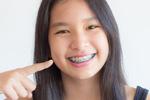 Orthodontics Menu Thumbnail